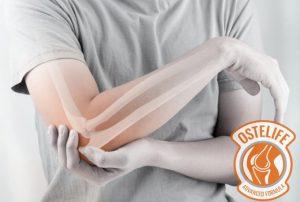 Ostelife - Site oficial- efeitos secundarios - efeitos