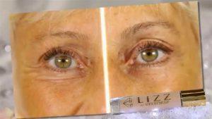 Lizz Serum - pomada - creme - Amazon