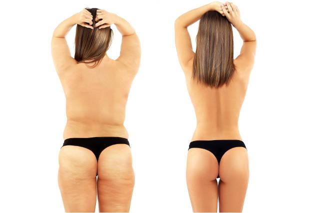 Ou talvez suplementos antes de emagrecimento terminares o anterior? Como perder peso?