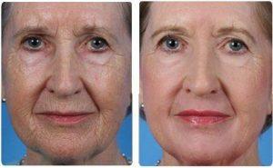 PERLE BLEUE Active Retention Age 2 - onde comprar - efeitos secundarios - funciona