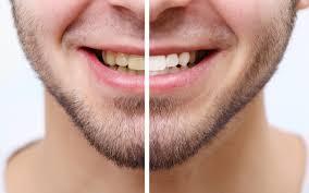 Snowhite Teeth Whitening- comentarios - Amazon - capsule