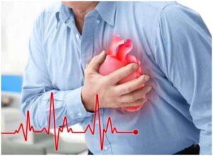 Cardione - achat - pas cher - mode d'emploi - comment utiliser?